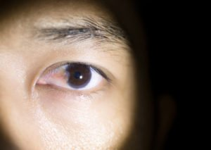Illustration of The Left Eye Is Swollen Due To Enlarged Ulcers?