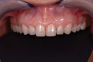 Illustration of Overcoming Advanced Tooth Structure?