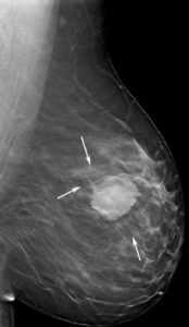 Illustration of Can X-rays Cause Breast Lumps?