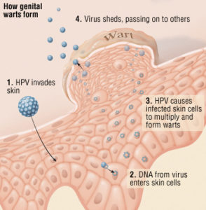 Illustration of Early Signs Of Symptoms Of A Person Suffering From HPV?