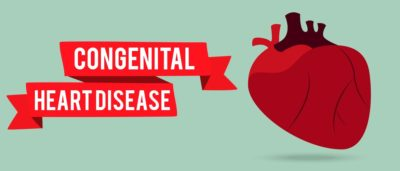 Illustration of People With Congenital Heart Disease Who Have GERD, Is It Dangerous?