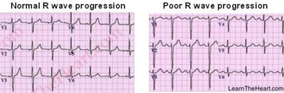Illustration of Indications Of PRWP Symptoms In The Heart?
