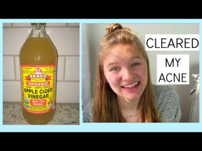 Illustration of Deal With Zits With Apple Vinegar?