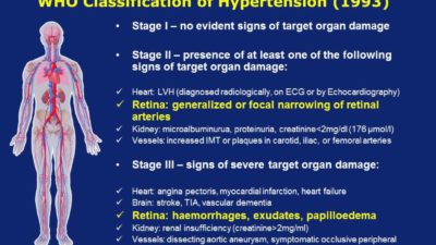 Illustration of Symptomatic Signs Of Hypertension?