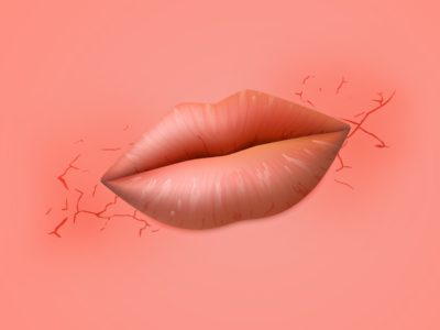 Illustration of Wound In The Corner Of The Lips And Filled With Water Accompanied By Fever?