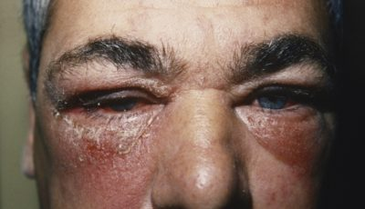 Illustration of Itchy Face Accompanied By Swelling And Rough?
