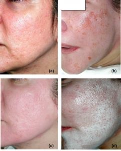 Illustration of The Use Of Acne Medicine After Peeling?
