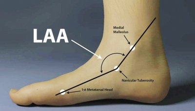 Illustration of Left Foot Growth After Pen Placement?