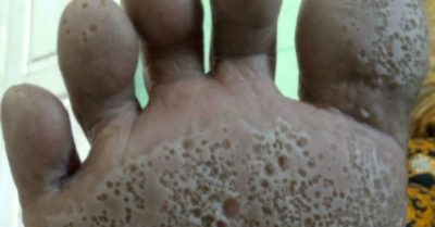 Illustration of How To Deal With Skin Infections In The Soles Of The Feet?