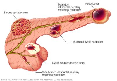 Illustration of How To Treat Pancreatic Cysts Without Surgery?