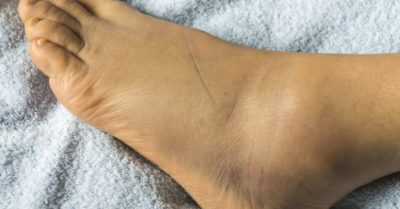 Illustration of The Foot Is Swollen And Feels Hot After Falling From The Motorcycle?