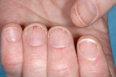Illustration of Does Frozen Blood On The Nails Can Inhibit Nail Growth?