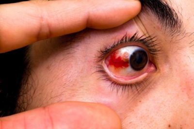 Illustration of The Left Eye Is Partially Red?