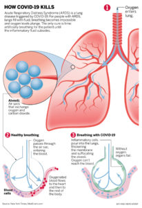 Illustration of The Cause Can Not Talk To Sufferers Of Watery Lungs?