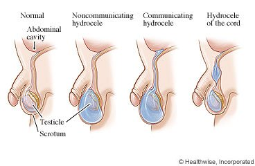 Illustration of Causes Of Swelling In The Testicles Of Infants And Children?