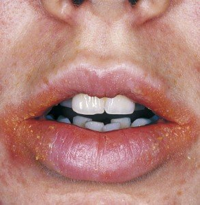 Illustration of Causes Small Yellow Seeds On The Lips?