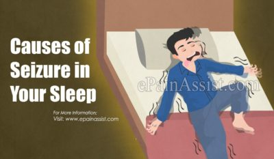 Illustration of Causes Of Seizures During Sleep?