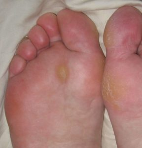 Illustration of Nipple In The Feet Yellowish White Accompanied By Pain When Pressed?