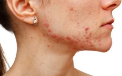 Illustration of Overcoming Excessive Stone Acne?