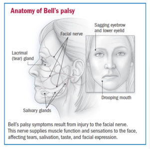 Illustration of Pain Behind The Ear In Sufferers Of Bell's Palsy?