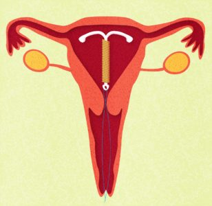 Illustration of IUD Thread Does Not Feel After Intercourse?