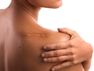 Illustration of Treatment Of Surgical Scars To Dry And Peel Quickly?