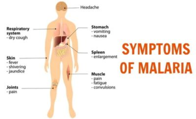 Illustration of Body Aches And Pain After Treatment Of Malaria?