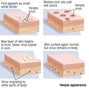 Illustration of Link Of Herpes With Lymph Nodes?