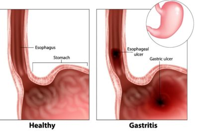 Illustration of What Is The Cause Of Vomiting Of Blood?