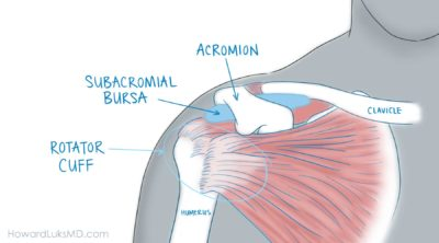 Illustration of The Cause Of The Shoulder Feels Sore At Night That Has Been Chronic?