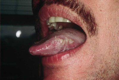Illustration of Difference Between Oral Thrush, Tongue Map And Oral Hairy Leukoplakia (OHL)?