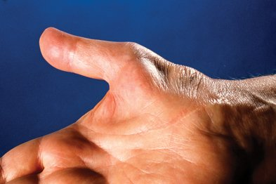 Illustration of Pain In The Palm Of The Hand When Clenched?
