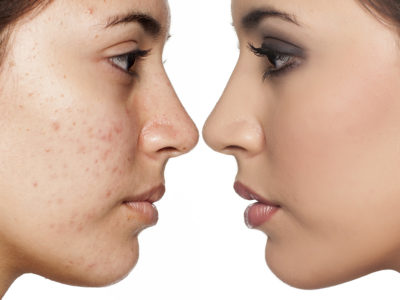 Illustration of Can Vitiligo Sufferers Do The BB Glow Procedure On The Face?