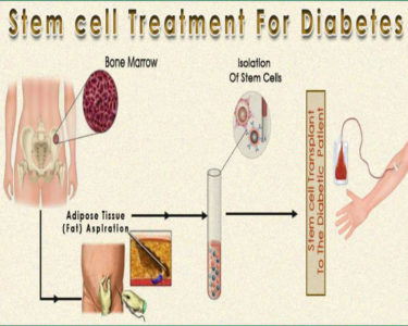 Illustration of Can Diabetes Be Cured With Stem Cells?