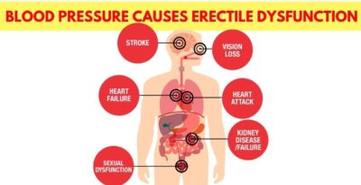 Illustration of Can Hypertension At A Young Age Cause Erectile Dysfunction?