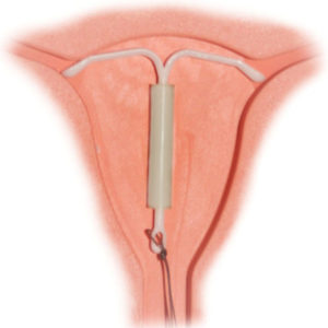 Illustration of Can A 23-year-old Woman Have Intercourse After An IUD Is Less Than 24 Hours?