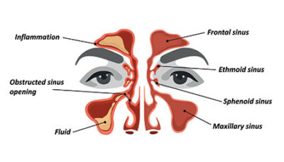 Illustration of Does Migraine 2 Days With Nasal Congestion Cause Sinusitis?