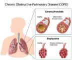 How To Deal With Emphysema Respiratory Disorders?