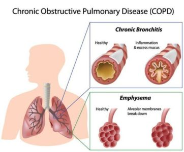 Illustration of How To Deal With Emphysema Respiratory Disorders?