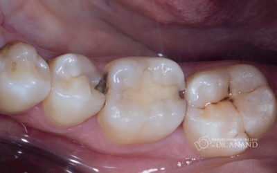 Illustration of How To Prevent Secondary Caries From Old Fillings?