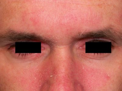 Illustration of Reddish Spots Appear On The Cheeks, Eyes And Forehead Of A 0 Month Old Baby?