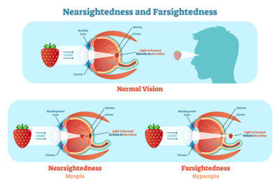 Illustration of How To Overcome Farsightedness?