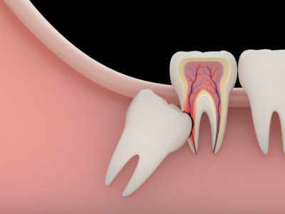 Illustration of How To Deal With Cavities With The Growth Of Wisdom Teeth?