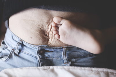 Illustration of The Stomach Feels Hard Like A Rock After Giving Birth?