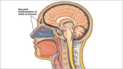 Illustration of Can Sinusitis Cause Inflammation Of The Brain?