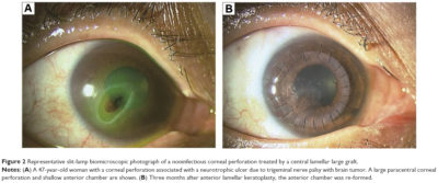 Illustration of What Is Corneal Perforation?