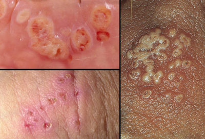 Illustration of Causes Sore, Bumps, And Blisters Around The Genitals?
