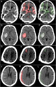Illustration of Effectiveness Of CT Scan For Bleeding In The Brain?