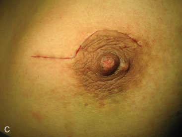 Illustration of Fibroadenoma Surgical Suture Marks Come Out Brownish Blood?