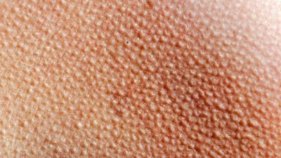 Illustration of Causes Of Spots On The Skin Such As Goosebumps?